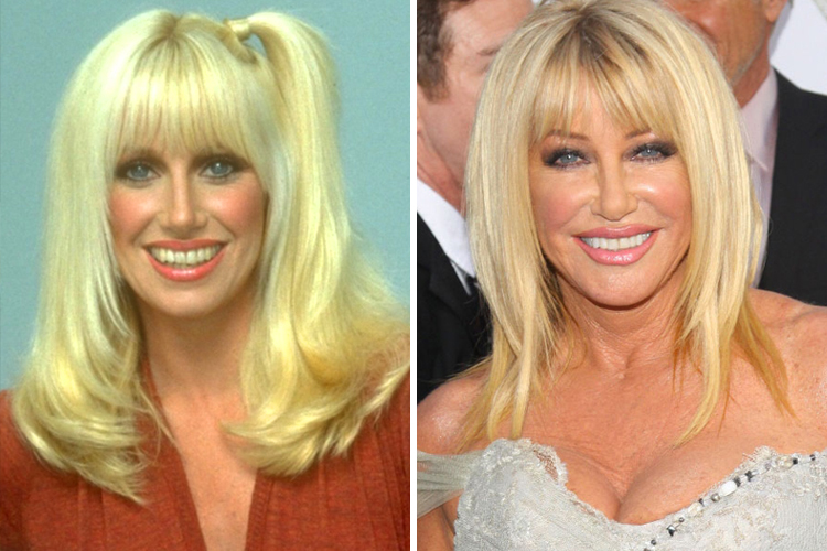 Image result for suzanne somers now