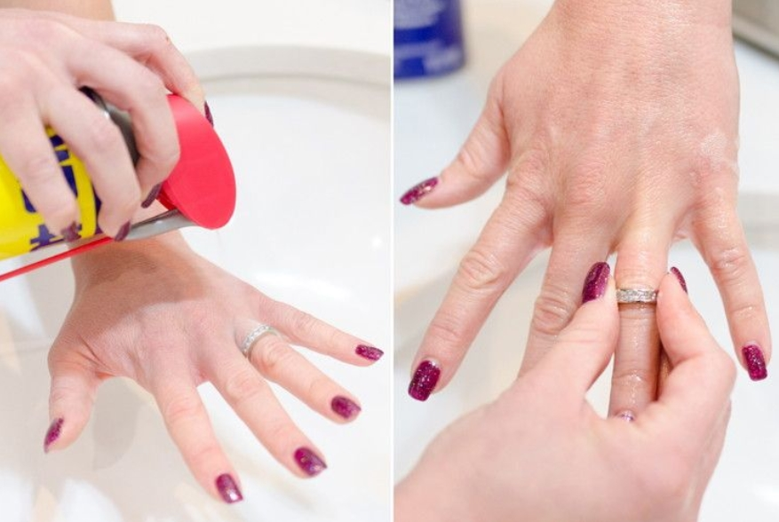 Removing Rings
